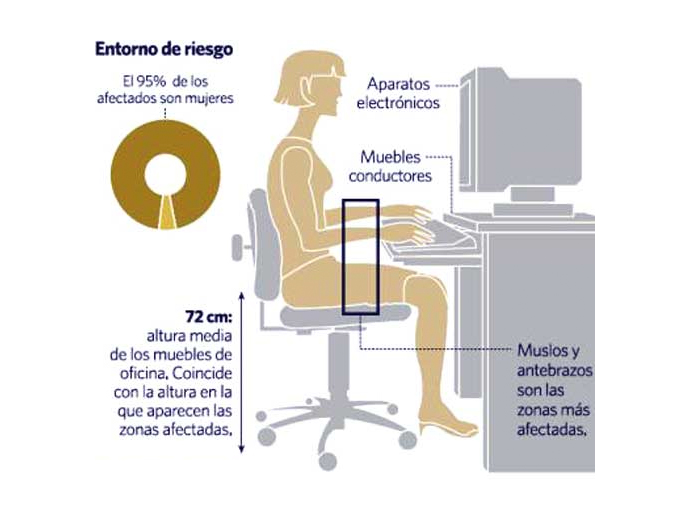 Delaoliva qu es la lipoatrofia semicircular qu for Fabricantes de mobiliario de oficina